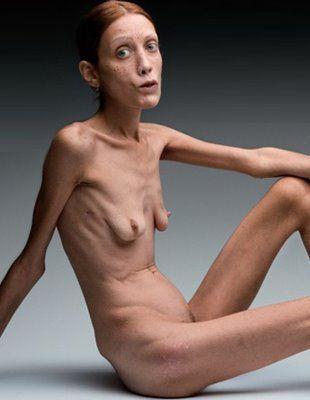 Фото самых худых голых девушек 52110 фотография